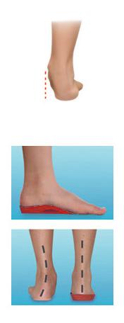 bra skor för plattfot